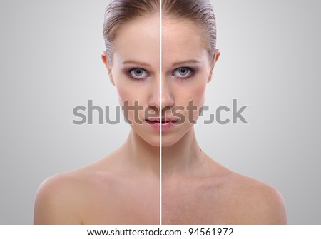 effect of healing of skin, beauty young woman before and after the procedure on a gray background