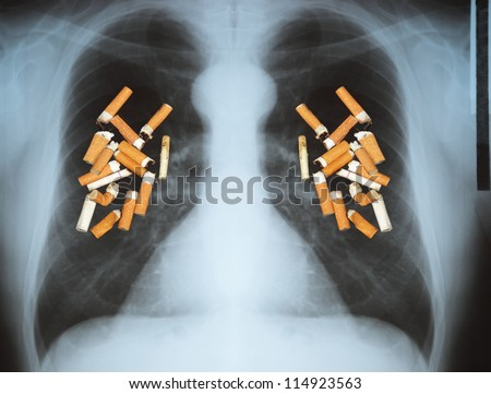 Effects of cigarette smoking - lung cancer.