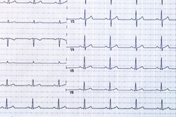 Ekg heart pulse on graph paper.