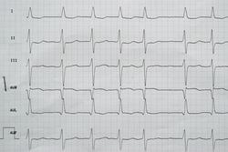 EKG: Limb leads, atrial fibrillation