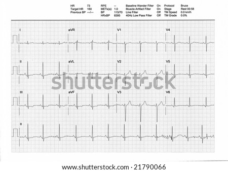 EKG or ECG result from a Treadmill Stress Test. Regular low heartbeat (73bpm) on rest phase (male, 34y).