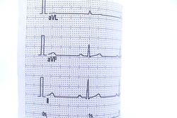 Ekg paper showing ECG results, white background.