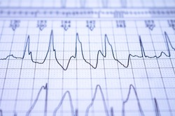 EKG tracing with heartbeat. Study for the heart. Waves with the electrical activity of the heart.
