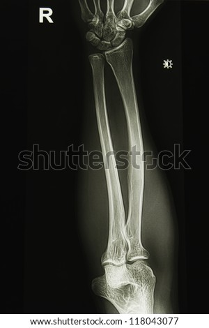 elbow joint x-ray image