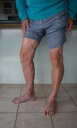 elderly man's bare legs suffering from varicose veins