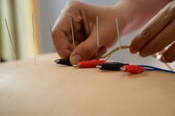 Electro-Acupuncture.Traditional Chinese acupuncture and Electro acupuncture on body of patient