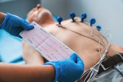 Electrocardiogram, ECG in hand. Cardiogram printout on male patient background