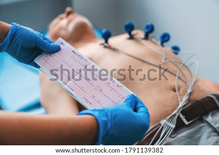 Electrocardiogram, ECG in hand. Cardiogram printout on male patient background Stock photo ©