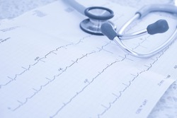 Electrocardiogram (ECG or EKG) with stethoscope. Selective focus. Blue tone image. Medical and healthcare concept.