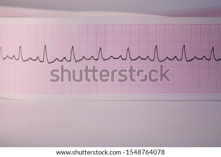 Electrocardiogram strip on white background Heartbeats represented on a strip of paper. Cardiac rhythm analysis. #1548764078