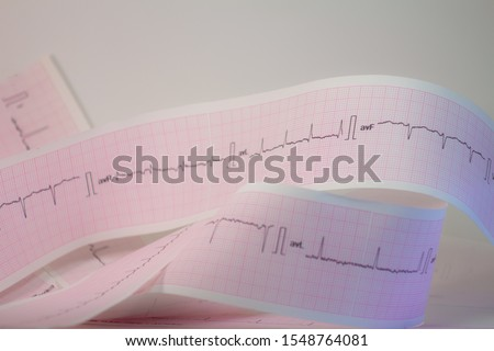 Electrocardiogram strip on white background Heartbeats represented on a strip of paper. Cardiac rhythm analysis. #1548764081