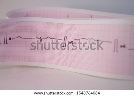 Electrocardiogram strip on white background Heartbeats represented on a strip of paper. Cardiac rhythm analysis. #1548764084