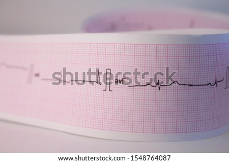 Electrocardiogram strip on white background Heartbeats represented on a strip of paper. Cardiac rhythm analysis. #1548764087