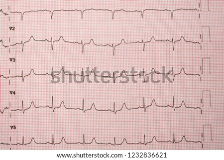electrocardiograms, Heartbeat represented on graph paper. #1232836621