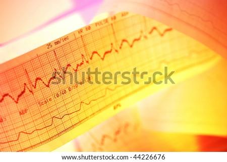 Electrocardiograph-ECG
