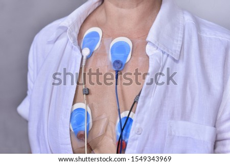 Electrode pads on the patien breast for connect to the holter monitor for check the heart rate in Cardiac Arrhythmia  #1549343969