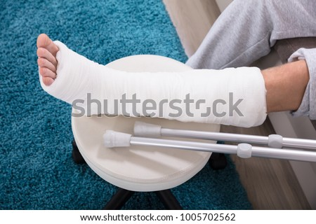 Elevated View Of Man's Broken Leg In Cast