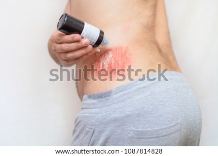 Free photos Abrasion on the skin | Avopix com