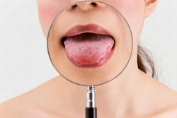 Enlarge a woman's tongue with a magnifying glass.
