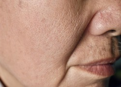 Enlarged pores in face of Southeast Asian, Chinese elder man with skin folds.