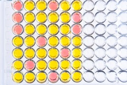 Enzyme-linked immunosorbent assay or ELISA plate, Immunology testing method in medical laboratory