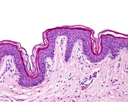 Epidermis of the thin skin. It can be identified the stratum basale, spinosum, a narrow stratum granulosum and a superficial well defined stratum corneum. The epidermis rest over the dermis.