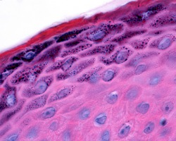 Epidermis of thin skin. Detail of keratinocytes of the stratum granulosum with numerous granules of keratohyalin.