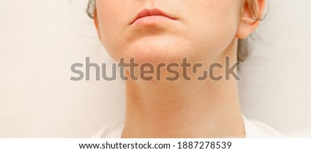 Epilation on the face of a woman with hair on her chin. The disease is a violation of the function of the thyroid gland and genetic abnormalities in the work of hormones. Foto stock ©