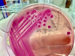 Escherichia coli grow on Macconkey agar show pink to rose-red colony which surround by a zone of precipitation bile.