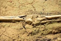 Excavated human leg bones with knee joint