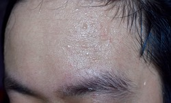 Excessive sweating or hyperhidrosis and oily skin  at forehead of Southeast Asian, Myanmar or Chinese adult young man. Oily skin is the result of overproduction of sebum from sebaceous glands.