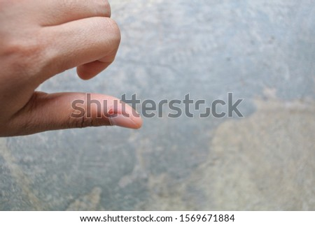 Excoriation (skin-picking) Disorder.Picking The Skin Around Nails and fingers. Diseases excoriation (skin-picking) disorder is a disease that is contained in the psychiatric diagnosis criteria.