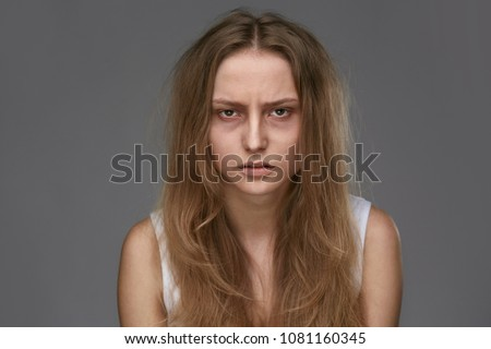 Exhausted Young Woman With Bruises Under Eyes