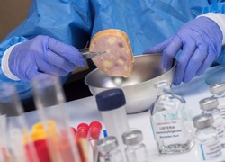 Expert analyzes stuffed meat contaminated by bacterium of listeria in laboratory, sprout caused in Spain