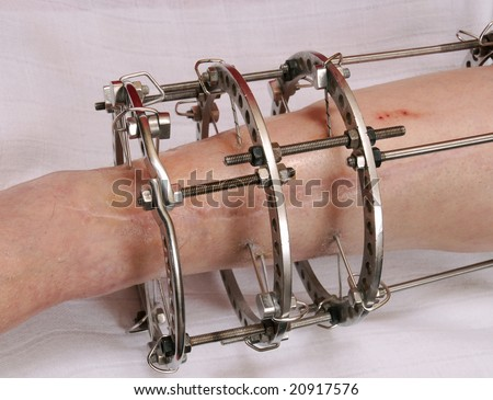 External ring fixation technique in orthopedic medicine - stock photo