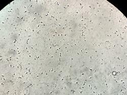Extraordinary macro view through the microscope at Petri Dish with many spermatozoa inside in the IVF laboratory. Horizontal.