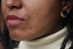 Extreme close up portrait of real African American woman with post acne spots and skin imperfections