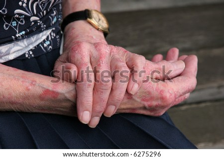 Extreme psoriasis skin disease on the hands of an elderly female.