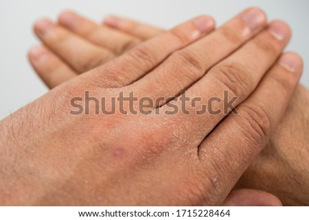 Extremely dry, dehydrated and cracked skin of a man's hand with fragments of epidermis that exfoliate due to excessive use of alcohol-based disinfectants during coronavirus (Covid-19) pandemic.  Foto stock ©