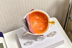 Eye anatomy, Human eye cross section physiology, Model of cornea and lens for ophthalmologist to explain myopia patient.