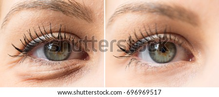 Eye bags before and after cosmetic treatment Stock photo ©