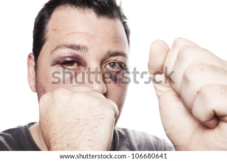eye injury, male boxer with black eye isolated on white. man after fight with bruise