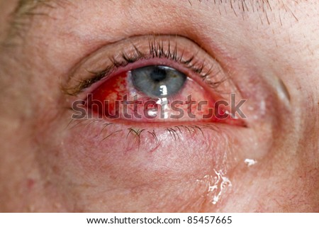 Eye injury - red eye with tears - close-up