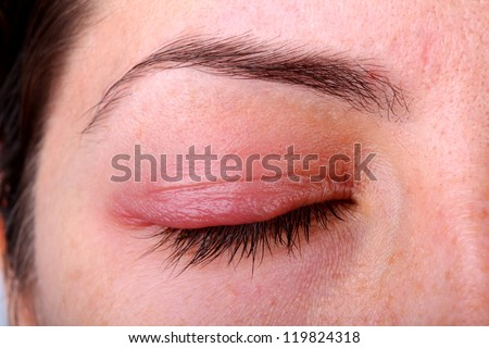 Eye sty. Closed woman's eye with sty.