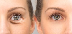 Eye with and without wrinkles, before and after surgery treatment