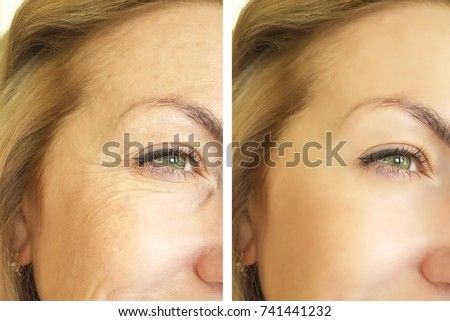 eye wrinkles before and after