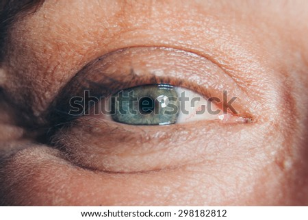 Eye wrinkles close up