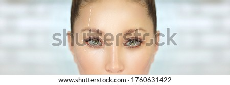 Eyelid surgery/Blepharoplasty,plastic surgeon,before and after Stock photo ©