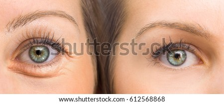 Eyes before and after beauty treatment with and without wrinkles