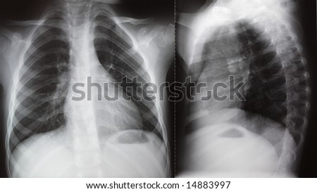 Face and lateral projection of chest X-ray